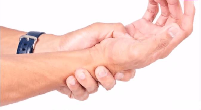 Biểu hiện của hội chứng ống cổ tay